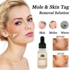 Organic Mole Removal Serum