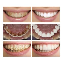 Liquid Teeth Whitening Essence